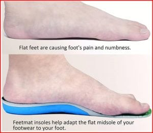 Insoles for flat feet